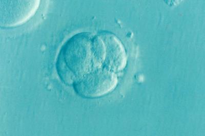 """Wyniki najnowszych badań orientacji komórek jajowych zwierząt ujawniają """"niespodziewaną"""" różnorodność"""